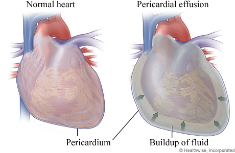 pericarditis treatment steroids